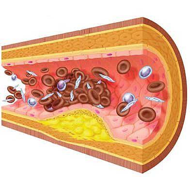 external image arteriosclerosis.jpg
