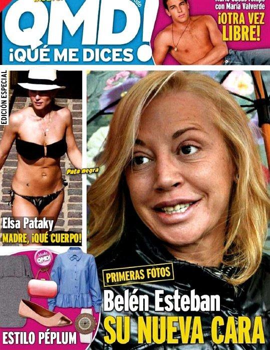 Mira la nueva cara de Belén Esteban - Fotos