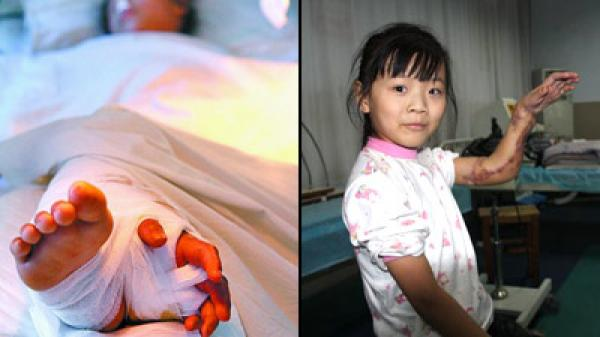 Conoce los injertos quirúrgicos más bizarros - Fotos