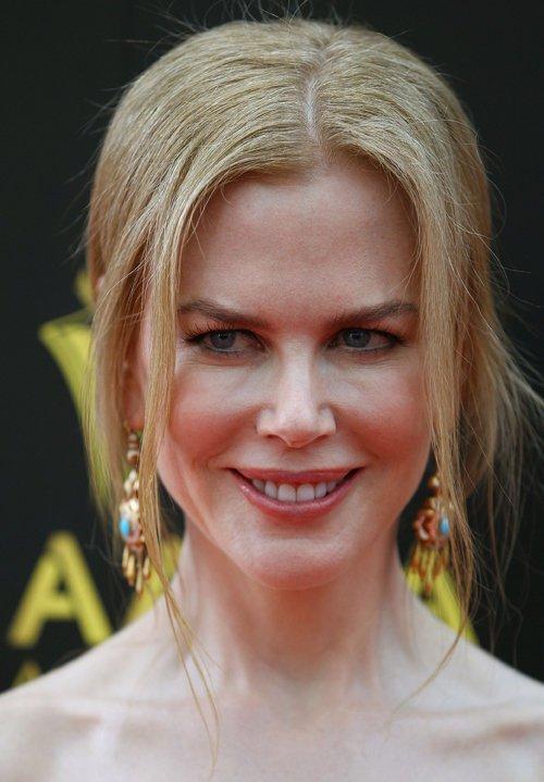 Nicole Kidman se arrepiente de tanto botox