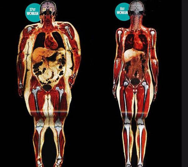 Descubre el daño que causa la gordura en tus órganos, huesos y músculos - Fotos