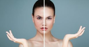 ¿Cómo tratar los poros abiertos del rostro?